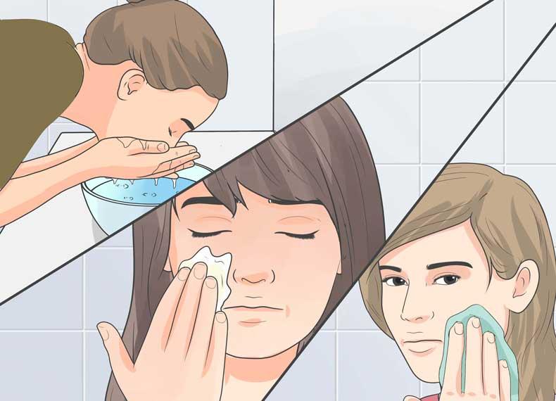 درمان خانگی جوش کیستیک