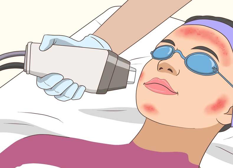 درمان جوش کیستیک با لیزر