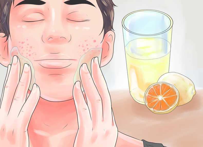 درمان جای جوش با آبلیمو