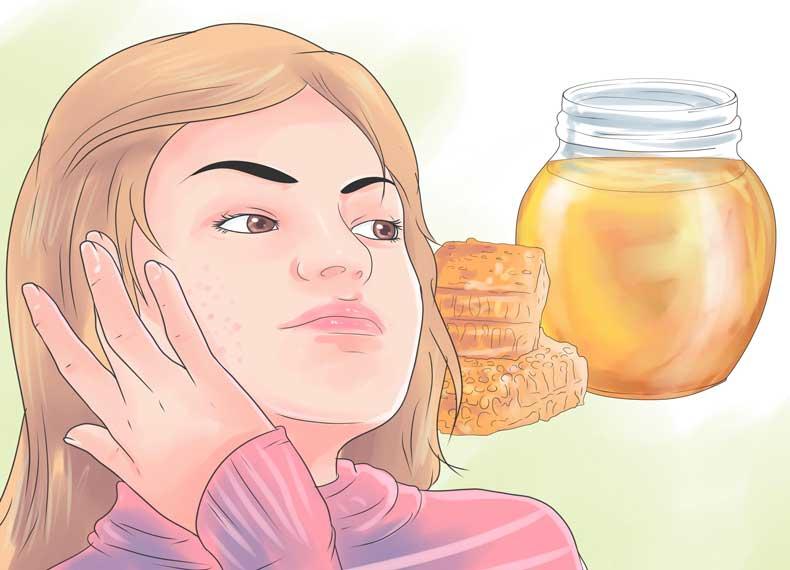 عسل و درمان جای جوش