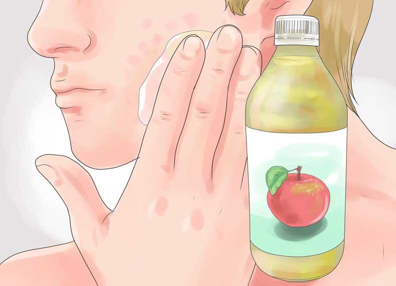 درمان جای جوش با سرکه سیب