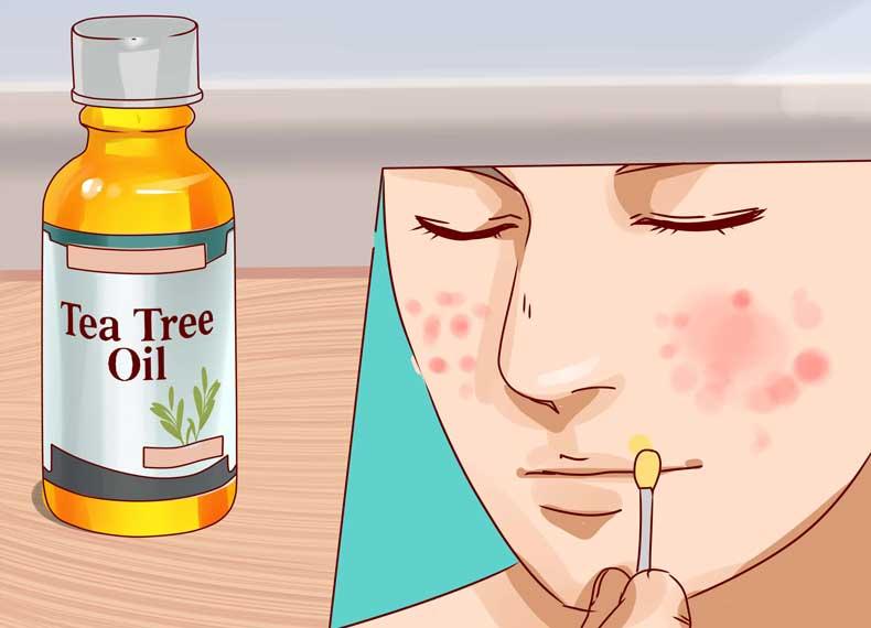 روغن درخت چای و درمان جوش زیرپوستی
