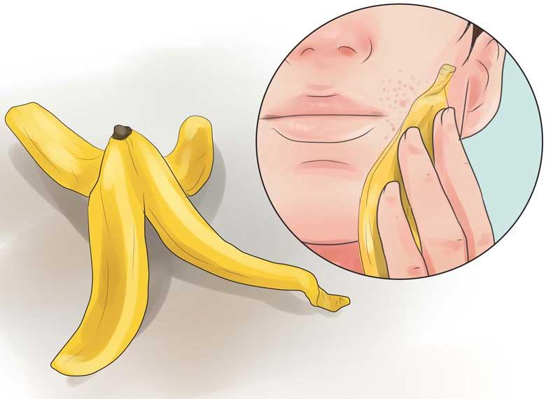 پوست موز و درمان جوش صورت