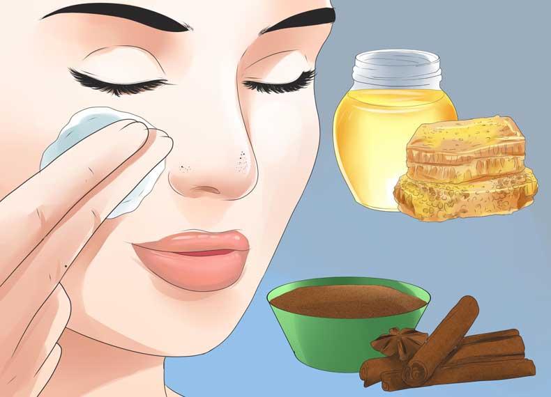 درمان جوش سرسیاه با عسل و دارچین