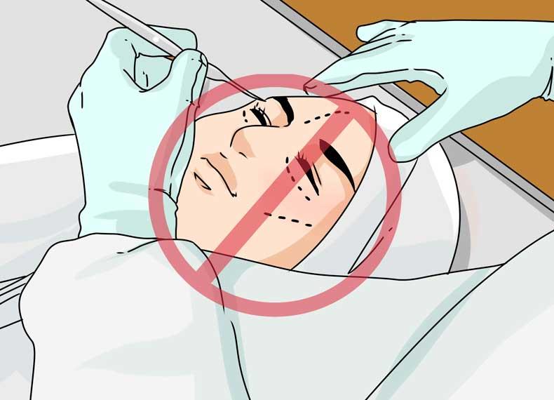 عمل جراحی لاغر کردن صورت