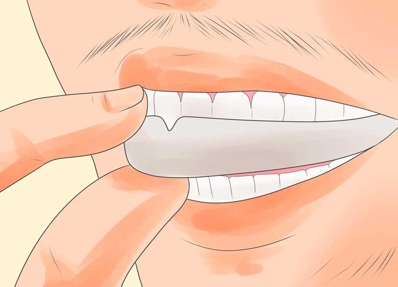 جلوگیری از آسیب به دندان