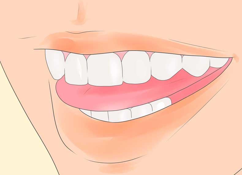 نشانه های دندان قروچه