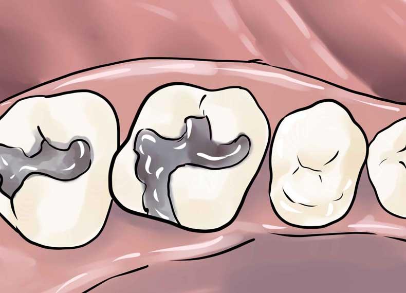درد دندان عقل