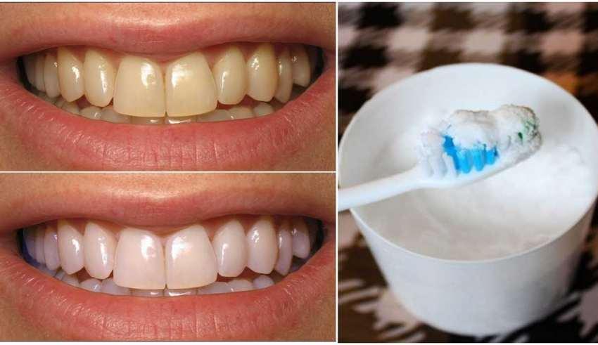 سفید کردن دندان با جوش شیرین
