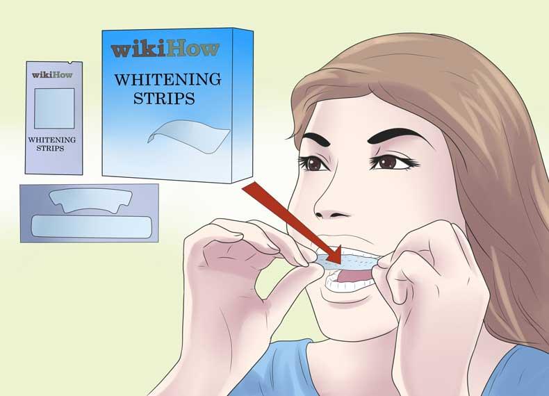 سفید کننده قوی دندان