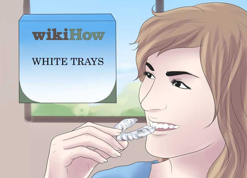 قالب سفید کننده دندان