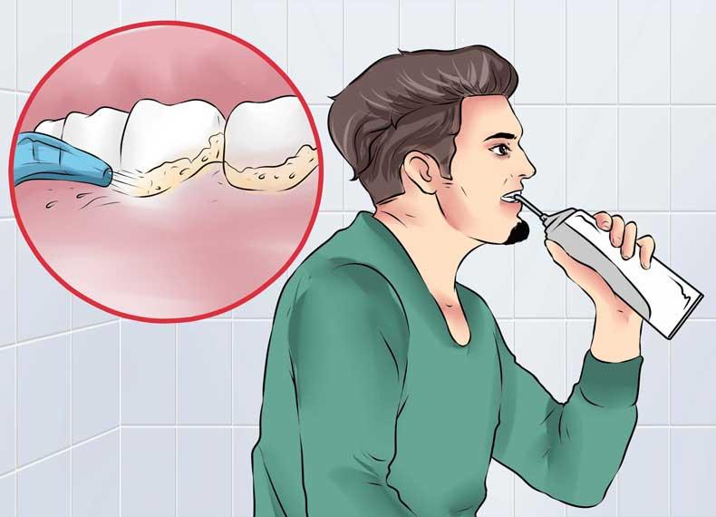 پلاک دندان و التهاب لثه