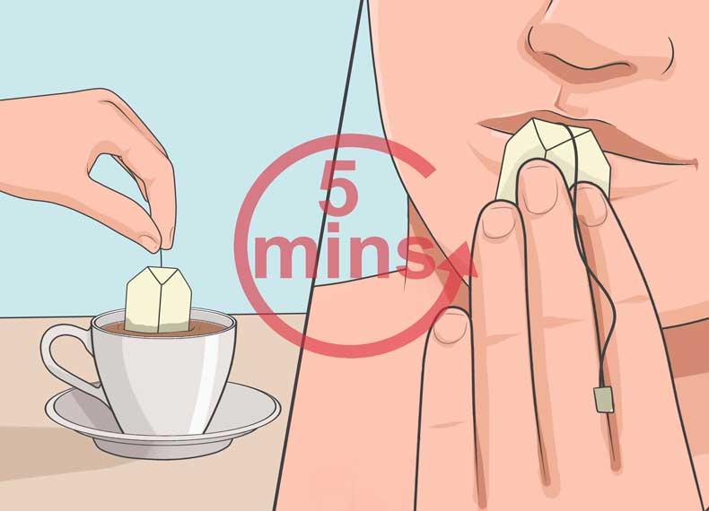 درمان سریع تب خال