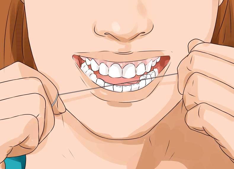 پوسیدگی دندان و نخ دندان