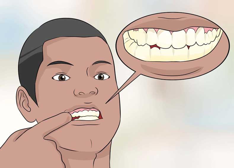 خراب شدن مینای دندان