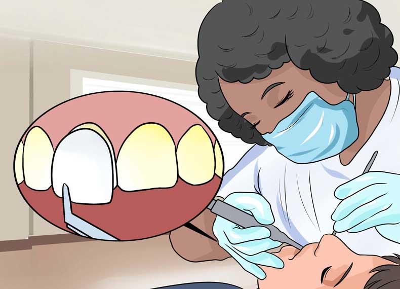 لمینیت دندانی