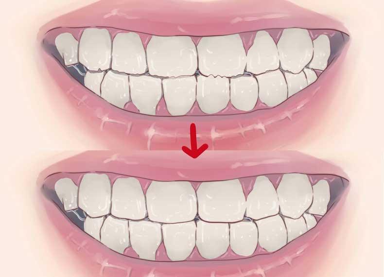 ترمیم دندان قروچه