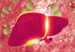 درمان هپاتیت a