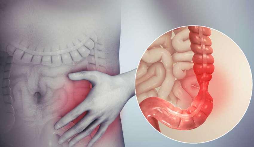 درمان IBS