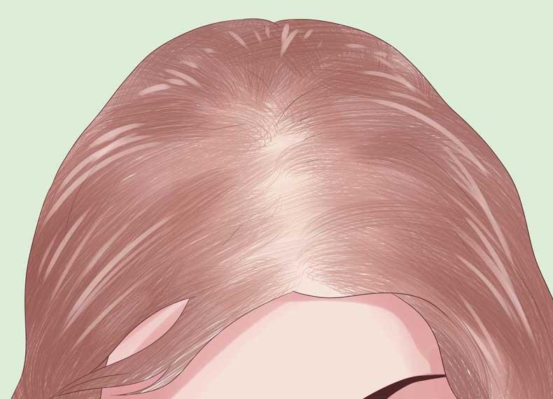 ریزش استرسی مو