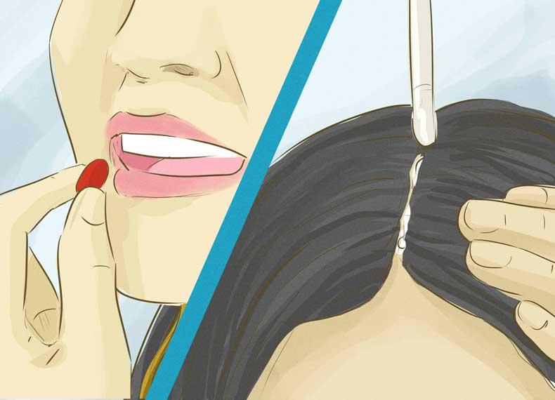 درمان علمی جلوگیری از ریزش مو
