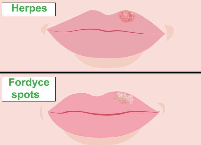 تفاوت دانه های چربی زیر پوستی و تبخال