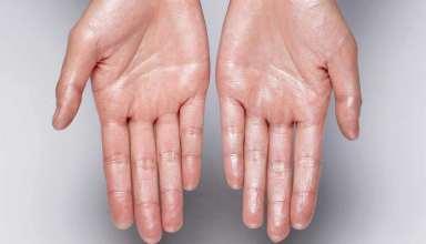 عرق کف دست