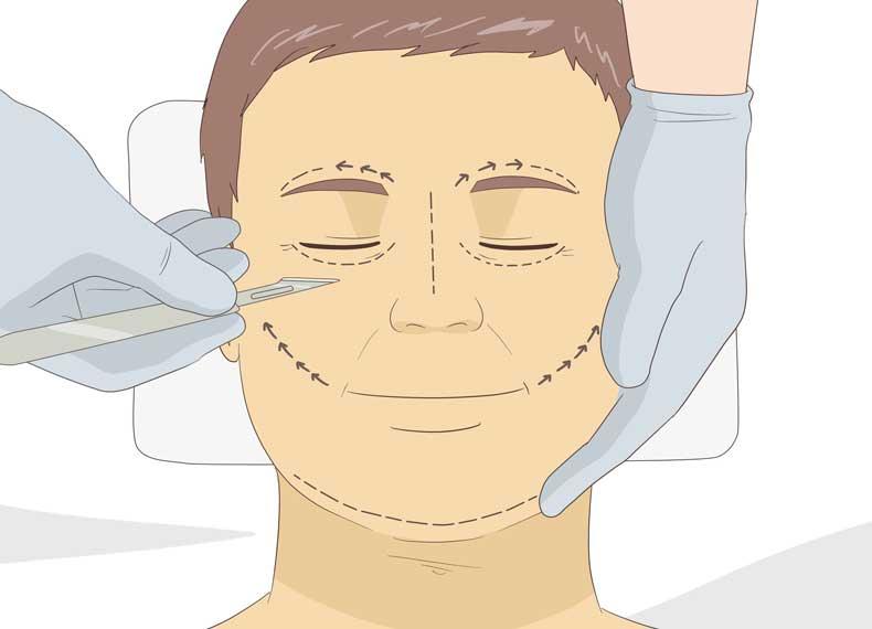جراحی برای شل شدن پوست صورت