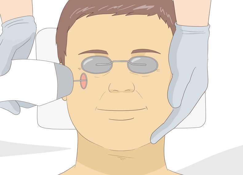 درمان شل شدن پوست صورت