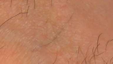 موی زیر پوستی