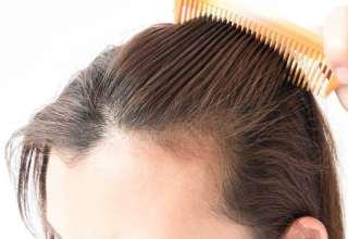 ریزش موی بعد از زایمان