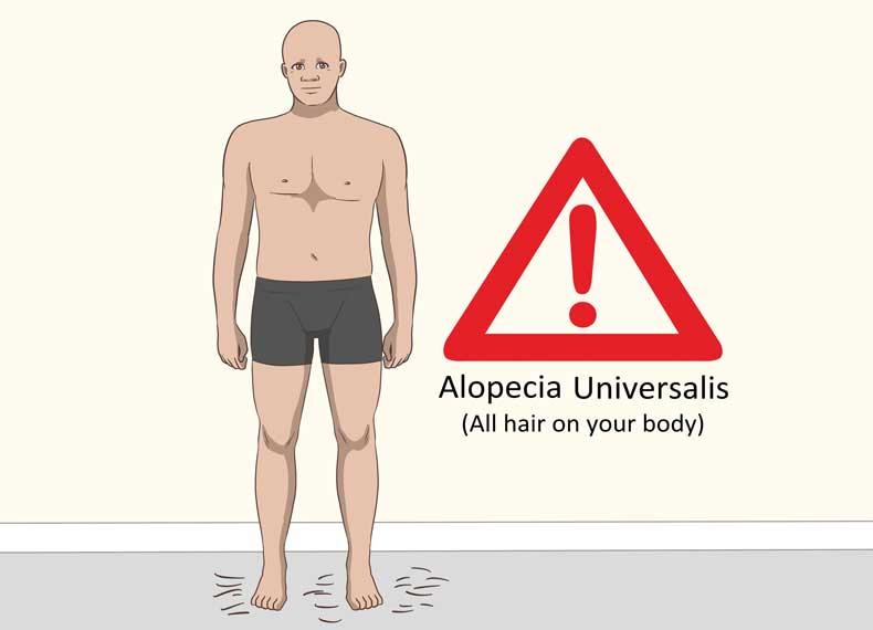 فاکتورهای مهم در آلوپسی