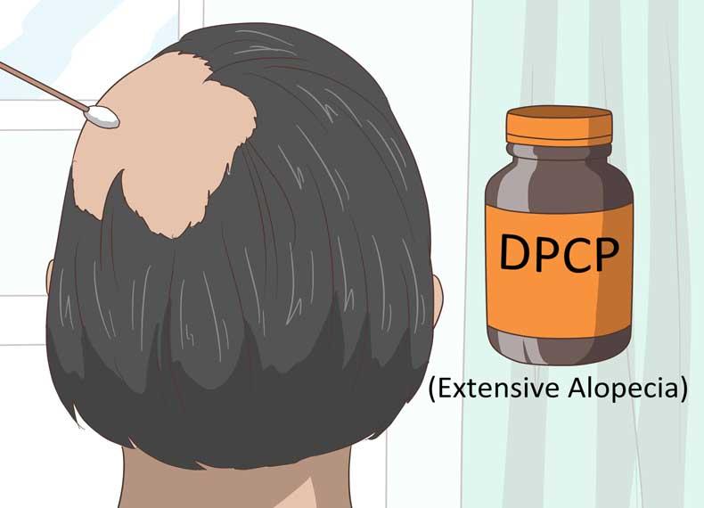 درمان سریع آلوپسی