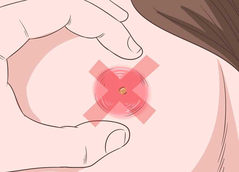 درمان دمل