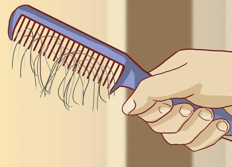 ریزش موی آلوپسی