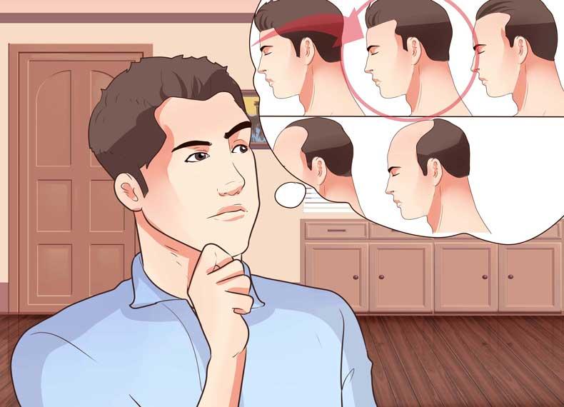 اندازه گیری میزان ریزش مو