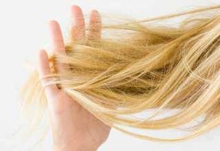 میزان ریزش مو