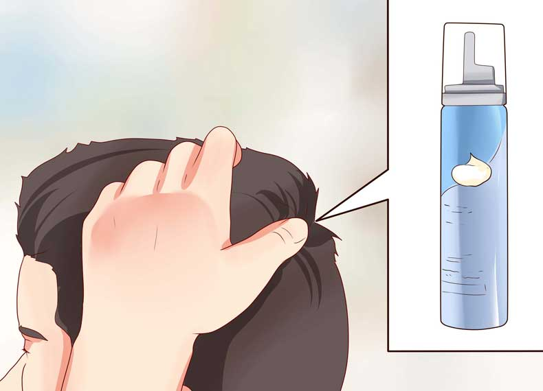 دارو برای ریزش مو