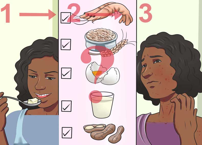 موادغذایی آلرژی زا کدامند