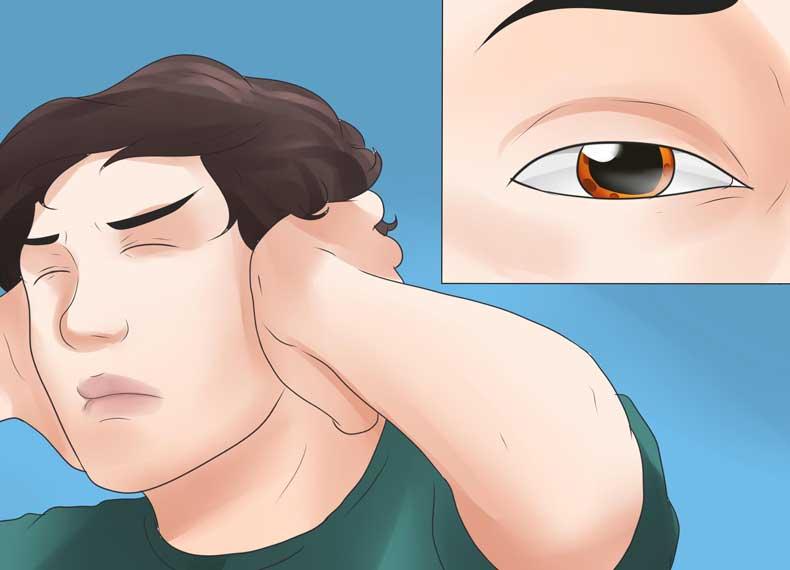 علائم هپاتیت اتوایمیون