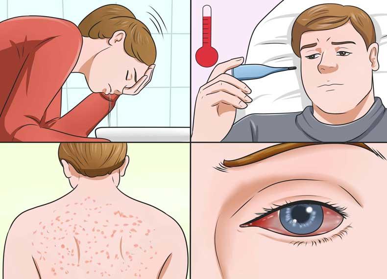 علائم ویروس زیکا