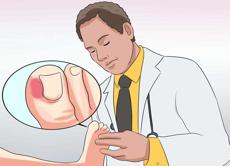 درمان تخصصی عفونت شست پا