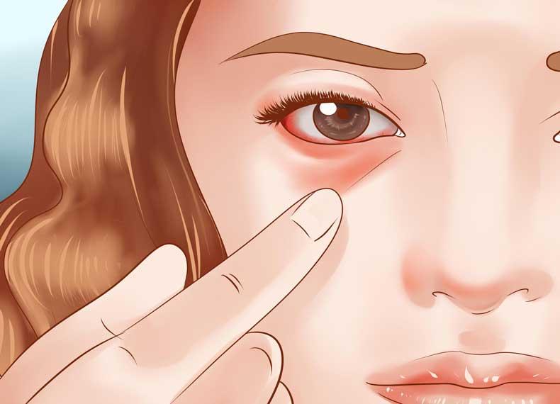 تشخیص سرخک
