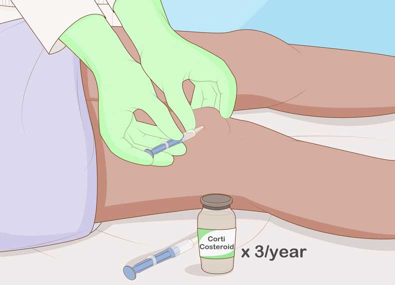 درمان قطعی التهاب مفصل
